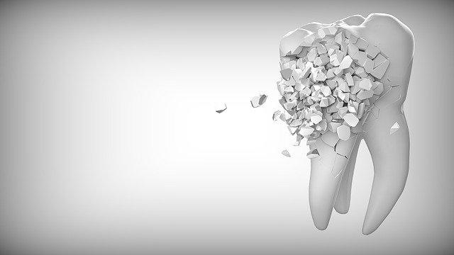 Carie dentaire et gestes simple pour éviter leur apparition